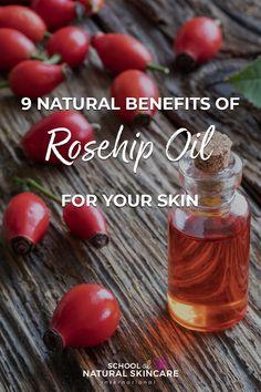 Benefits Of Rosehip Oil, Rosehip Oil Uses, Rosehip Oil For Skin, Natural Medicine, Herbal Medicine, Natural Oils, Natural Skin Care, Rosehip Recipes, Natural Beauty Recipes