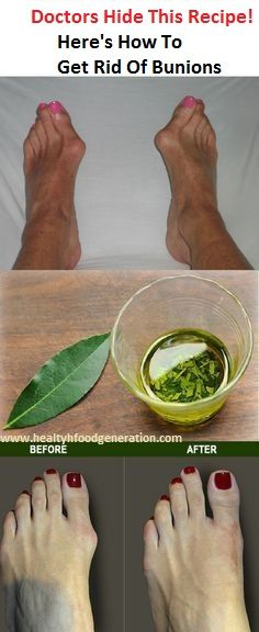 Top 10 Ways to Get Rid of Bunions Fast (Without Surgery