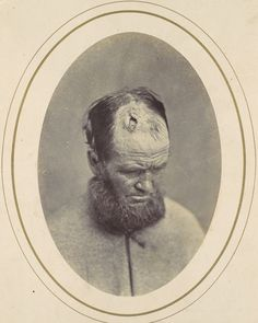 "Reed Brockway Bontecou, ""John Parkhurst"", 1865  John Parkhurst was wounded in the final month of the Civil War, on April 7, 1865, at Farmville, Virginia. A private in Company E of the 2nd New York Heavy Artillery, Parkhurst received a gunshot wound to the head.  via"