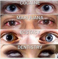 Dentaltown - This is what your eyes look like on cocaine, marijuana, ecstasy, & dentistry.