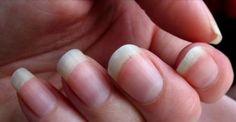 11 varovných signálov o zdraví, ktoré vysielajú vaše nechty