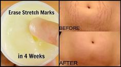 This cream will erase all stretch marks from your skin like rubber !! Ingredients : Aloe Vera Gel (1 tbsp) + Lemon Gel or Juice (1 tbsp) + Castor Oil (1 tsp) + Vitamin E Capsule (1) Preparation Add all ingredients in a clean bowl and mix them very well until they all are ...