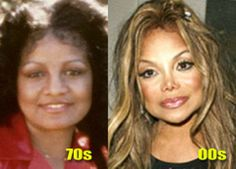 Another of the Jackson family, Latoya, who don't like the look they were born with, so sad  The Worst Plastic Surgery Botch-Ups | Martian Herald