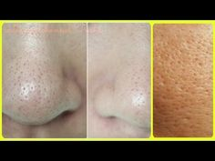 How to get clear, glowing, spotless skin by using aloe Vera gel - YouTube