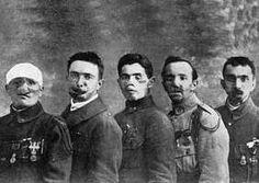 chirurgir de guerre   Ci-dessus cinq blessés de la face, présents lors du traité de ...