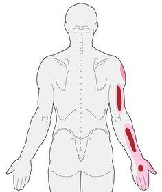 referral-posterior-coracobrachialis-cropped
