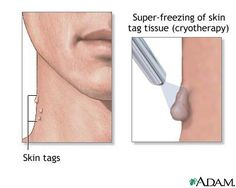 How to remove skin tags painlessly Dusting spray, Oregano oil, Tea tree oil, Clear nail polish, Apple cider vinegar / use Q-tip to apply