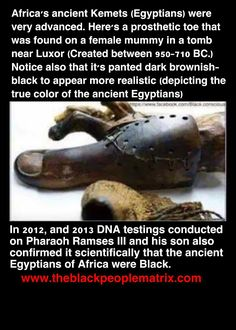 Don't think this is true! But the prosthetic toe is very interesting By Any Means Necessary, Black History Facts, Black Pride, My Black Is Beautiful, African American History, My People, World History, Black People, Just In Case