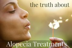 The Truth About Alopecia Treatments