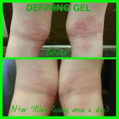 ✳️✳️eczema ? Psoriasis? Defining gel helps with that and scars, faded tattoos , it helps to maintain the results of the wrap questions ? Click the link below and leave me a message or follow me on IG; beauty _by_ inches http://wrapawayinches.myitworks.com/