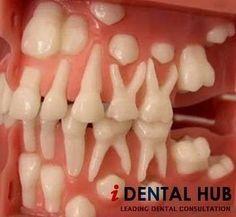 Permuta dei denti www.studiobianchivicard.it