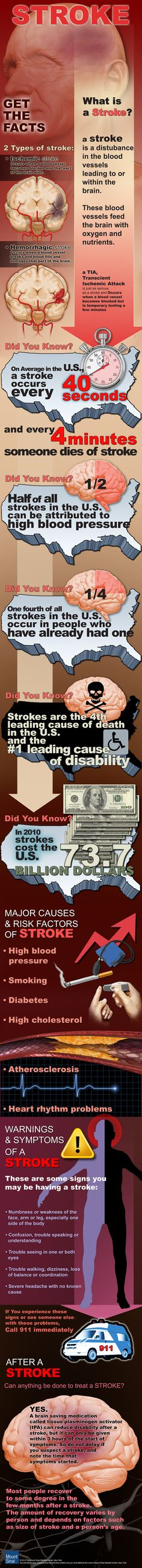 Get the Facts on Stroke Infographic. Pinned by ottoolkit.com your source for geriatric OT resources.