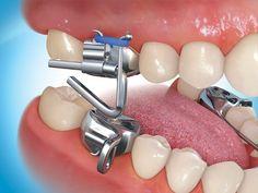 Mara essay dentistry