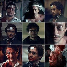 Hannibal - wounded Will Graham