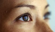 4 Factors That Up Your Chances For Droopy Eyelids