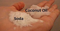 2 cucharadas de aceite de coco extra virgen orgánico. 1 cucharadita de bicarbonato de sodio libre de aluminio reduce el enrojecimiento, cicatrices y elimina todas las células muertas de la superficie de su piel. Posee propiedades antibacterianas, curativas e hidratantes, que son muy beneficiosos para nutrir y calmar la piel.