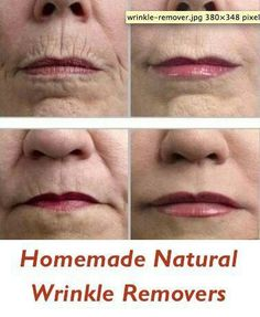 Homemade Natural Wrinkle Removers: 1. Mash a banana until it has a creamy texture and apply it to your entire face for 30 minutes.  2. Coconut oil is the best option for natural wrinkle removal, since it rebuilds our skin tissue. 3. Pineapple juice has bromelain which eats away our top layer of skin and leaves the new fresh skin underneath.