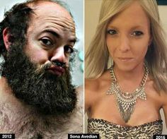 10 Amazing transgender before and after transformation
