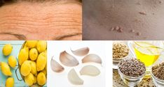 Goodbye Wrinkles, Spots, Freckles and Warts! Just Mix this And You will Rejuvenate your Body by Les Rides, Warts, Detox Drinks, Herbal Medicine, Herbal Remedies, Getting Old, Freckles, Coco, Herbalism