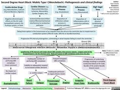Second Degree Heart Block: Mobitz Type I (Wenckebach): Pathogenesis and clinical findings Nursing School Notes, Nursing School Graduation, Medical School, Ob Nursing, Nursing Schools, Pharmacology Nursing, Medical Mnemonics, Medical Facts, Medical Science