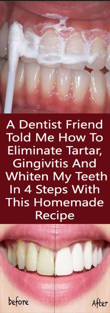 A Dentist Friend Told Me How To Eliminate Tartar, Gingivitis And Whiten My Teeth In 4 Steps With This Homemade Recipe - Strange Things in Life Teeth Health, Healthy Teeth, Dental Health, Dental Care, Teeth Whitening Remedies, Natural Teeth Whitening, Healthy Recipes, Healthy Tips, Healthy Food