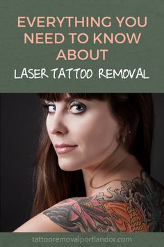 59 Best Laser Tattoo Removal images in 2019 | Laser tattoo