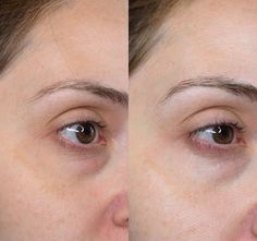 Before and After Olay Regenerist Micro-Sculpting Cream