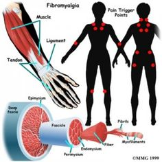 A chronic syndrome that leads to widespread musculoskeletal pain, crippling fatigue with stiffed and achy muscles, is referred to as fibromyalgia. Fatigue Causes, Chronic Fatigue Syndrome, Fibromyalgia Pain, Chronic Pain, Chronic Illness, Fibromyalgia Syndrome, Fibromyalgia Treatment, Fibromyalgia Quotes, Treating Fibromyalgia