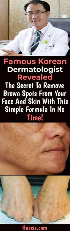 Famous Korean Dermatologist Revealed The Secret Remove Brown Spots From Your Face And Skin With This Simple Formula In No Time! – Mind is Health Spots On Forehead, Age Spots On Face, Brown Spots On Skin, Skin Spots, Dark Spots, Brown Skin, Dark Brown, Acne Spots, Lotion