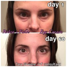 "Rodan+Fields Multi Function Eye Cream!! Reduces Puffy eyes and dark circles, minimizes the appearance of crows feet.  It works! Contact me today! 60 day ""empty jar"" money back guarantee.  tsilvestre.myrandf.com"