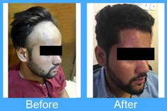Post surgery look after the hair transplant treatment of one of our patients'. For more such results and for any query, visit our website. Hair Transplant In India, Hair Transplant Surgery, Hair Fall Solution, Fall Hair, Plastic Surgery, Clinic, Website, Hair Falling Out