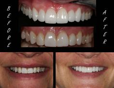 Conservative Porcelain Veneers