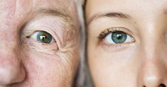 Treatment of wrinkles around the eye in traditional and herbal medicine Green Eyes Genetics, Anti Aging, Yoga Facial, Revision Skincare, Think Fast, Dark Circles Under Eyes, Best Eye Cream, Top, Photography