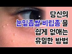 눈밑 좁쌀 '비립종' 전분으로 쉽게 없애자! - YouTube