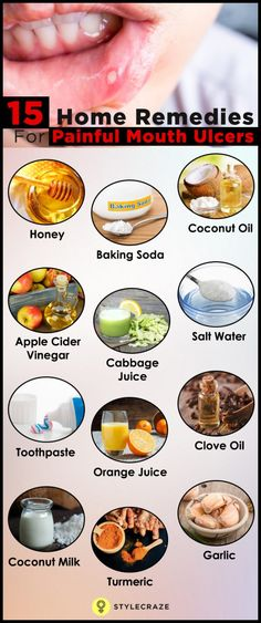 Top 15 Home Remedies To Cure Mouth Ulcers