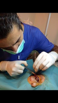 Blepherolasty Fast effective painless  procedure under Local anesthesia , fast recovery