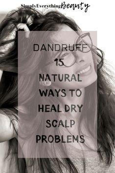 Dandruff- 15 Natural Ways to Heal Dry Scalp Problems #dryscalpremedy #naturalhairtreatment #dandrufftreatment