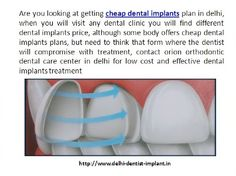 Are you looking at getting cheap dental implants plan in delhi, when you will visit any dental clinic you will find different dental implants price. http://www.delhi-dentist-implant.in/dental-implants-in-delhi.html