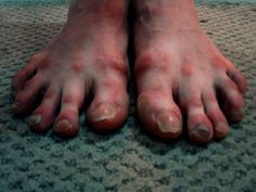 what ballet does to your feet... - The dance is so beautiful.......but so.hard on the body.