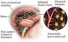 Migraine Headache (NYU Langone Medical Center)