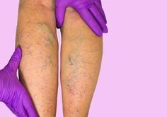 Vein treatment clinic is one of the best vein center, offers latest solution for varicose vein removal on legs. Find one of the top doctors near you for varicose veins treatment in Houston Texas. Varicose Vein Removal, Varicose Veins Treatment, Get Rid Of Spider Veins, 29 Weeks Pregnant, Spider Vein Treatment, Salud Natural, Circulation Sanguine, Workout Regimen, Health Advice