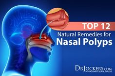 Watch This Video Sensational Natural Remedies for Chest Congestion Relief Ideas. Captivating Natural Remedies for Chest Congestion Relief Ideas. Chest Congestion Remedies, Congestion Relief, Allergy Remedies, Flu Remedies, Headache Remedies, Holistic Remedies, Health Remedies, Sinus Polyps, Polyps Symptoms