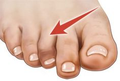 funny pictures showing how painful feet feel. - Google Search