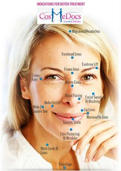 Botox can be used for a variety of indications. Some of them are mentioned here.