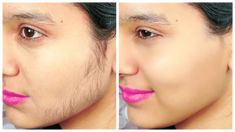 Learn how to remove facial hair in 15 minutes using only 3 simple ingredients. This is a very simple home remedy to remove facial hair without the need for hair removal creams or painful wax treatment. Stop Facial Hair Growth, Upper Lip Hair Removal, Unwanted Hair, Unwanted Facial, Ingrown Hair, Face And Body, Beauty Skin, Natural Hair Styles, Natural Beauty