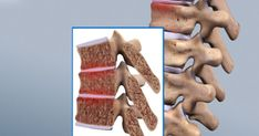 Juvenile Osteochondrosis Of The Spine