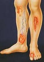 деготь, желток, как лечить трофическую язву, сливки, трофическая язва, трофическая язва лечение, трофическая язва лечение народными средствами, трофическая язва на ноге, трофическая язва нижних лечение, трофические язвы на ногах лечение