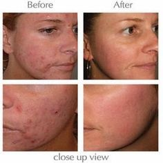 Tips To Get Rid of Pimples Overnight - Follow These Techniques to Help Get Rid of Pimples Overnight Like Magic