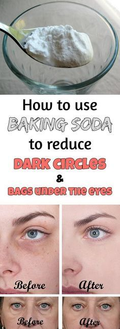Reduce Dark Circles And Bags Under The Eyes with Baking Soda.
