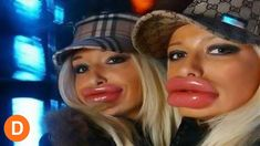 Cosmetic Surgery World. Steps On How To Go About Cosmetic Surgery. Plastic surgery could make a huge difference. There are risks involved though, and you should consider Botox Lips, Bad Plastic Surgeries, Funny People Pictures, Photoshop Fail, Celebrity Plastic Surgery, Celebrities Before And After, Duck Face, Cosmetic Procedures, Lip Fillers